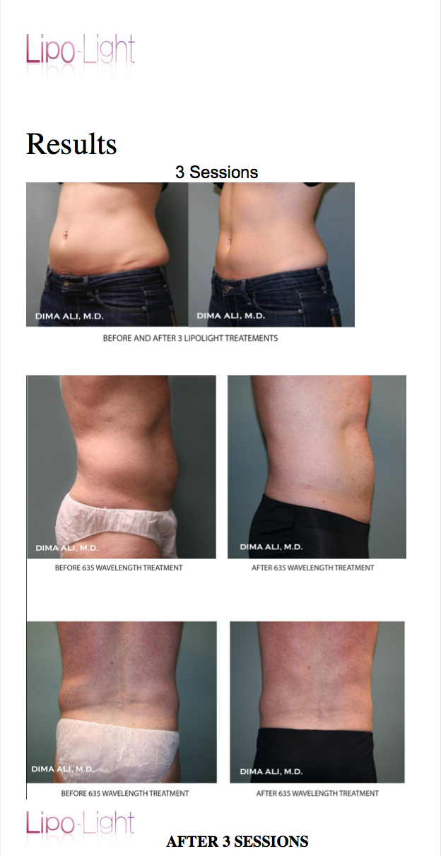 How Long Does Lipo Light Results Last Decoratingspecial Com